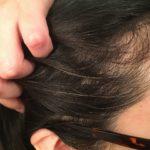 白髪は染めないで直す!ボズレーシャンプー使用1か月後。